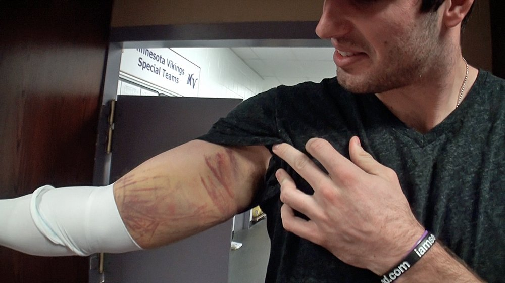 This Gross Picture Of Vikings QB Christian Ponder's Arm ...